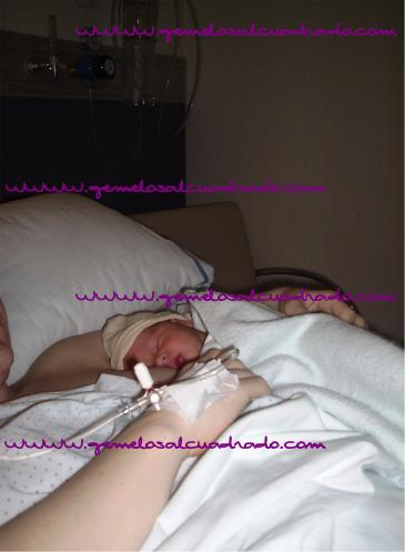 lactancia materna después de cesárea